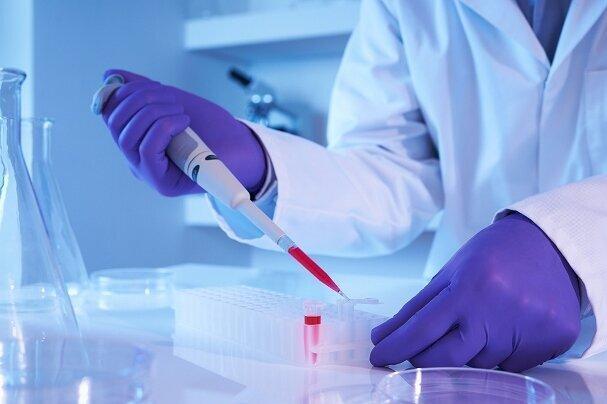 کیت تشخیص مولکولی کرونا ساخته شد، تشخیص در 55 دقیقه